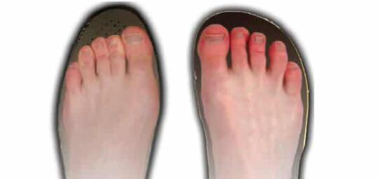 causes of wide feet