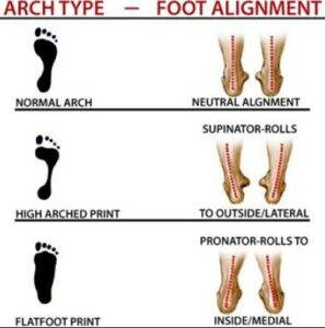 different arch types