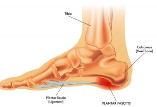 what are the causes of plantar fasciitis