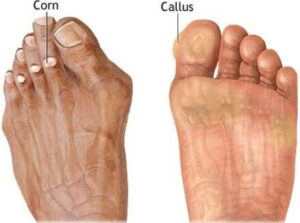 best shoes for bunions and corns