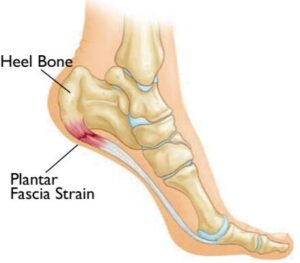 best shoes for bunions and plantar fasciitis