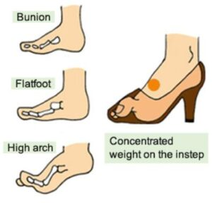 causes of bunions with high arch