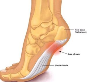 causes of arch pain