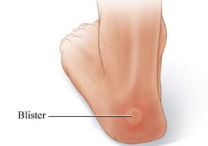 causes of blister