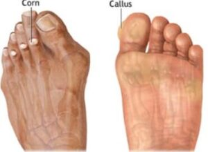 causes of calluses