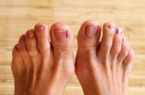causes of hammertoes