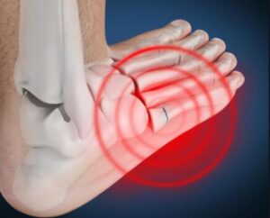 causes of lateral foot pain