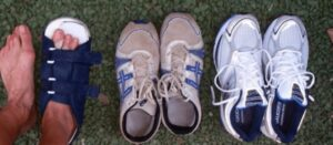 best sneakers for feet with bunions