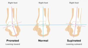 causes of bunions and pronation