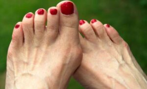 definition of bunions feet