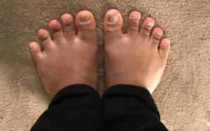 causes of bunions and flat feet