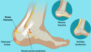 the major causes of heel pain